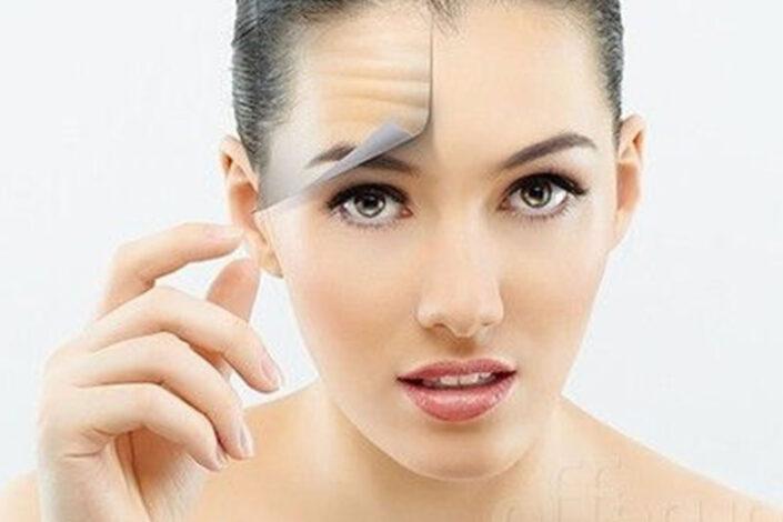 Botox Injection Servicio - Isabella Mia Skincare