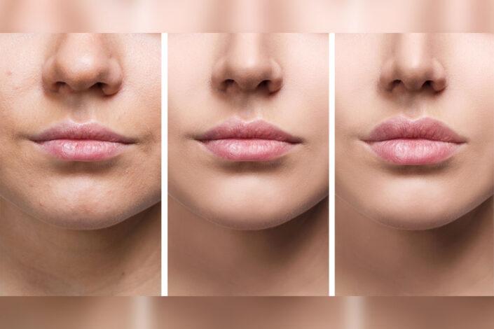 Lips Augmentation Service - Isabella Mia Skincare