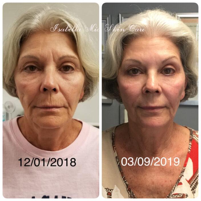 skin-tightening - Isabella Mia Skincare
