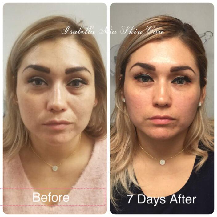 vampire-face-lift - Isabella Mia Skincare